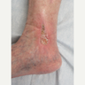 45-54 year old woman treated with Vein Treatment