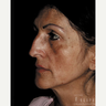 45-54 year old woman treated with Chemical Peel