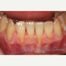 Gingival Graft