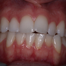 25-34 year old woman treated with Invisalign