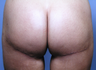 35-44 year old woman treated with Butt Lift