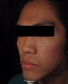 18-24 year old man treated with Acne Scars Treatment
