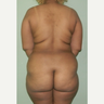 25-34 year old woman treated with Tumescent Liposuction
