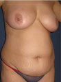 Mommy Makeover  Breastlift (Mastopexy) & Tummytuck
