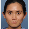 25-34 year old woman treated with Otoplasty
