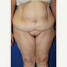 Tummy and torso contouring with circumferential body lift