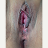 25-34 year old woman treated with Vaginoplasty and Perineoplasty