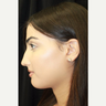 18-24 year old woman treated with Facial Feminization Surgery