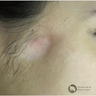18-24 year old woman treated with Scars Treatment