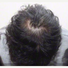 35-44 year old woman treated with Scalp Micropigmentation