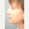 55-64 year old woman treated with Rhinoplasty
