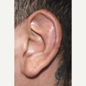 25-34 year old man treated with Ear Surgery
