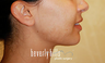 Chin Augmentation with Radiesse