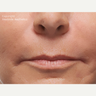 Radiesse Nasolabial Folds