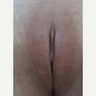 25-34 year old woman treated with Genital Beautification