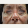 45-54 year old woman treated with Fractora RF for lower lids and mid face skin tighening