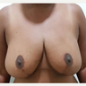 35-44 year old woman treated with Breast Reduction