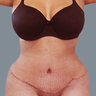 Abdominal Liposuction with Tummy Tuck