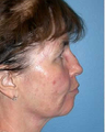 Woman treated with Blue Peel