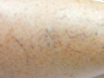 Surface Ohmic Thermolysis with Thermal Heat for Spider Veins