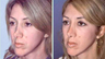 Severely Over-Resected Rhinoplasty Is Corrected