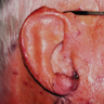 65-74 year old man treated with Ear Surgery