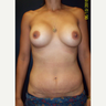 36 year old woman treated with Silicone Breast Implants