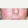 45-54 year old man treated with Yag Laser