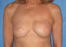 65-74 year old woman treated with Nipple Surgery