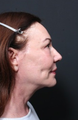 55-64 year old woman treated with Facelift