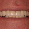 45-54 year old man treated with Dental Implants