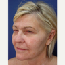 55-64 year old woman treated with Non Surgical Face Lift