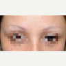 35-44 year old woman treated with Eyebrow Transplant