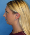 24 year old woman treated with Chin Liposuction