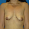 Breast Lift with Silicone Implants