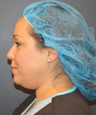 35-44 year old woman treated with ThermiTight and liposuction