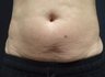 55-64 year old woman treated with SculpSure
