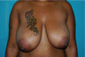 6 Month Post Operative Breast Reduction