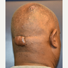 45-54 year old man treated with Scars Treatment