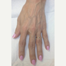 57 year old woman treated with Radiesse