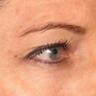 54 year old woman treated with Ultherapy
