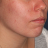 18-24 year old woman treated with Photodynamic Therapy