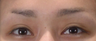 Young  woman with Eyebrow Hair Transplant/Restoration procedure