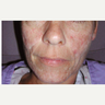 45-54 year old woman treated with Scars Treatment