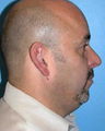 Man treated with Chin Implant
