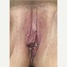 35-44 year old woman treated with Vaginal Rejuvenation