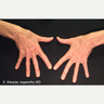 Hand Rejuvenation with Platelet Rich Plasma Injections