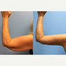 59 year old woman treated with Arm Lift and liposuction of the posterior arms.