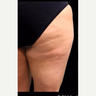 45-54 year old woman treated with Cellulite Treatment