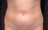 Liposuction of Abdomen